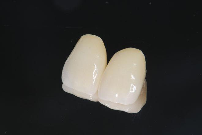 理由2 歯茎が黒ずまない