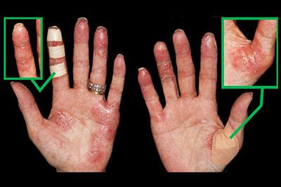 CASE1 掌蹠膿疱症(金属アレルギーなし)