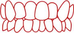 歯の重なりが激しい