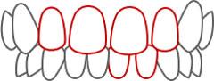 すきっ歯(歯と歯の間にすきまがある)