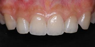 ダイレクトボンディング 前歯