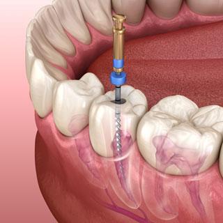 抜髄 前歯小臼歯大臼歯