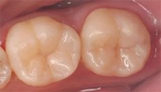 ダイレクトボンディング 臼歯