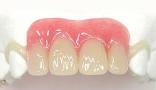 部分入れ歯白いクラスプ義歯