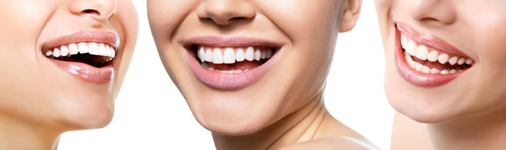 ノアホワイトで歯を白くする3つのメリット