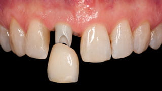 人工歯の型どり・装着