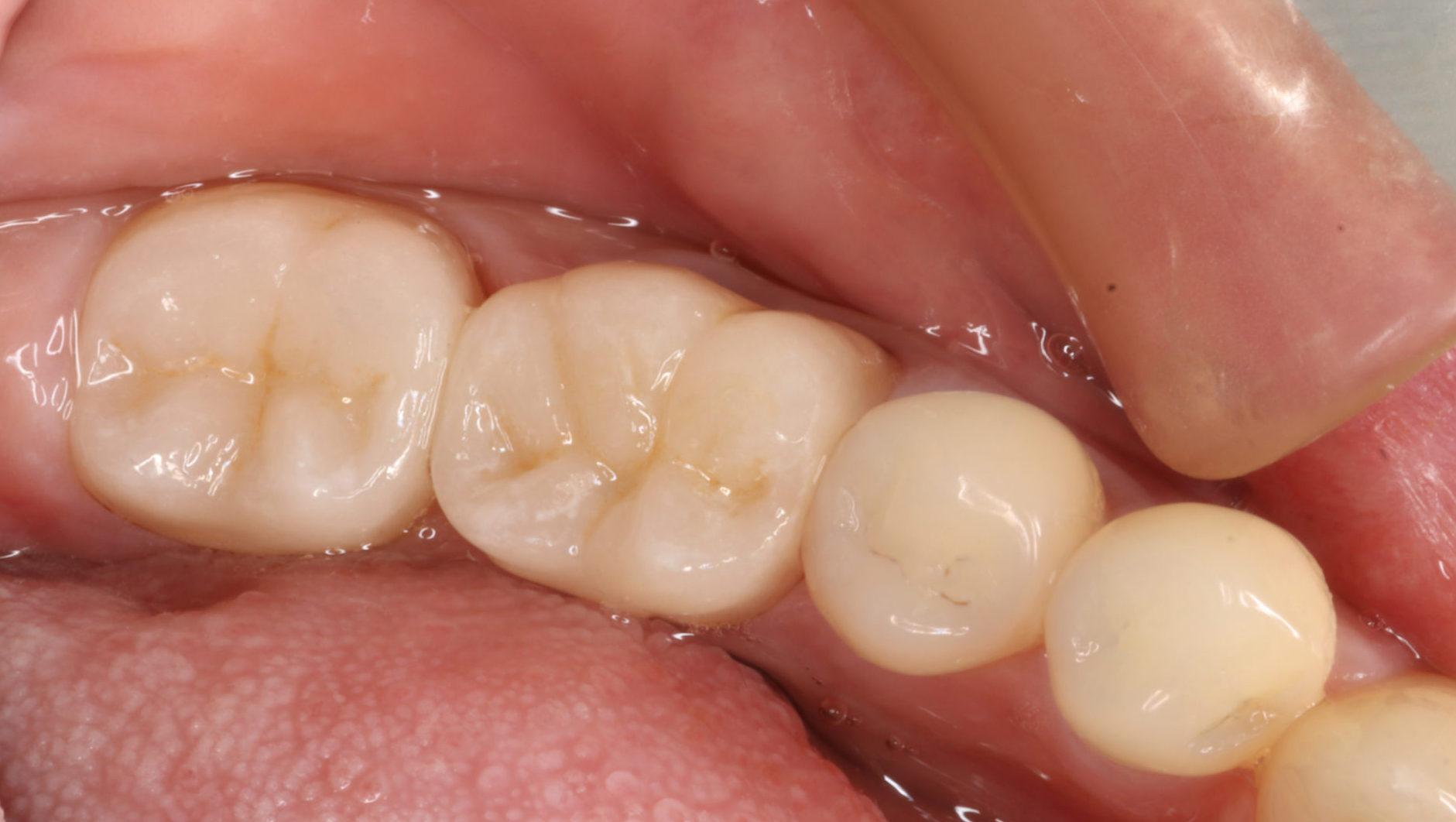 奥歯 ジルコニア治療