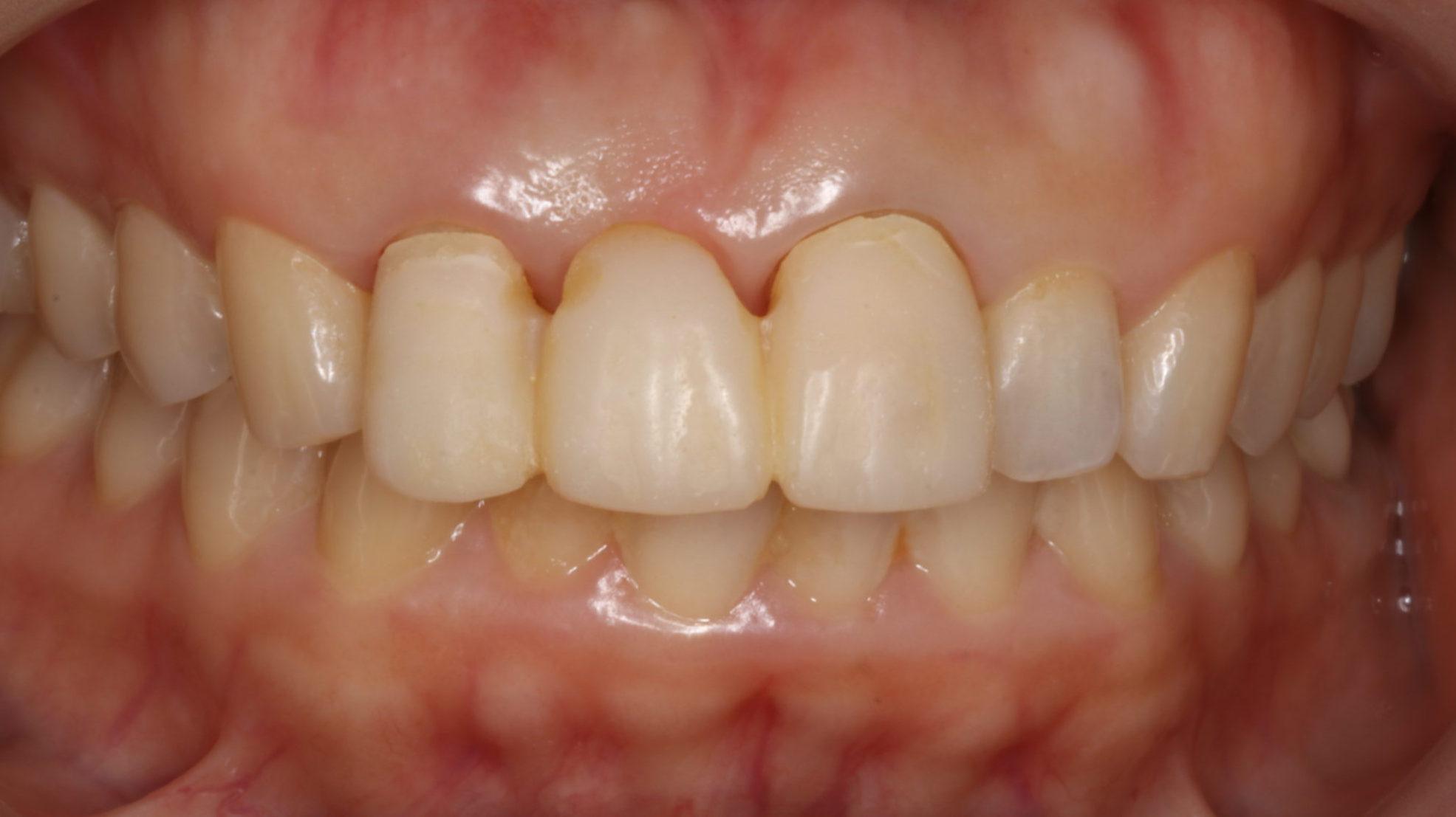 天然の歯のようなキレイな前歯にしたい