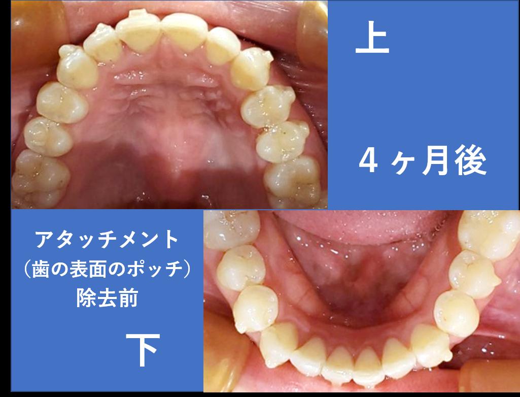 マウスピース部分矯正(前歯の凸凹)