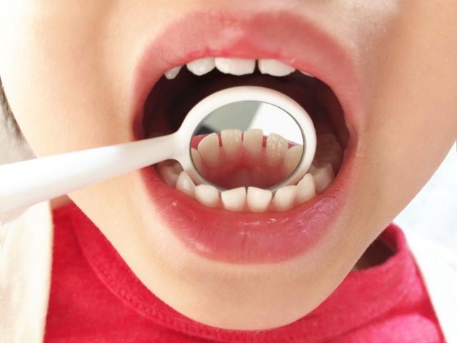 前歯の裏が腫れたときに考えられる原因とは?生活習慣や病気に注目