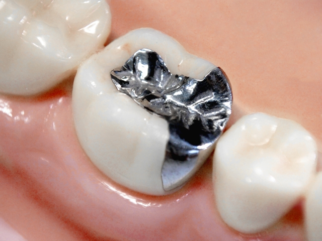 銀歯だらけでいる3つのリスク