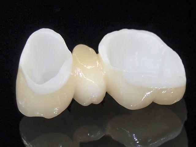 セラミックの歯とは何が違う?ジルコニアを選ぶ5つのメリット