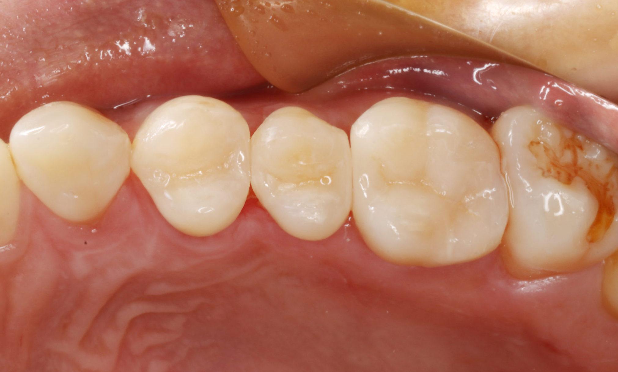 上の奥歯3本・セラミック詰め物