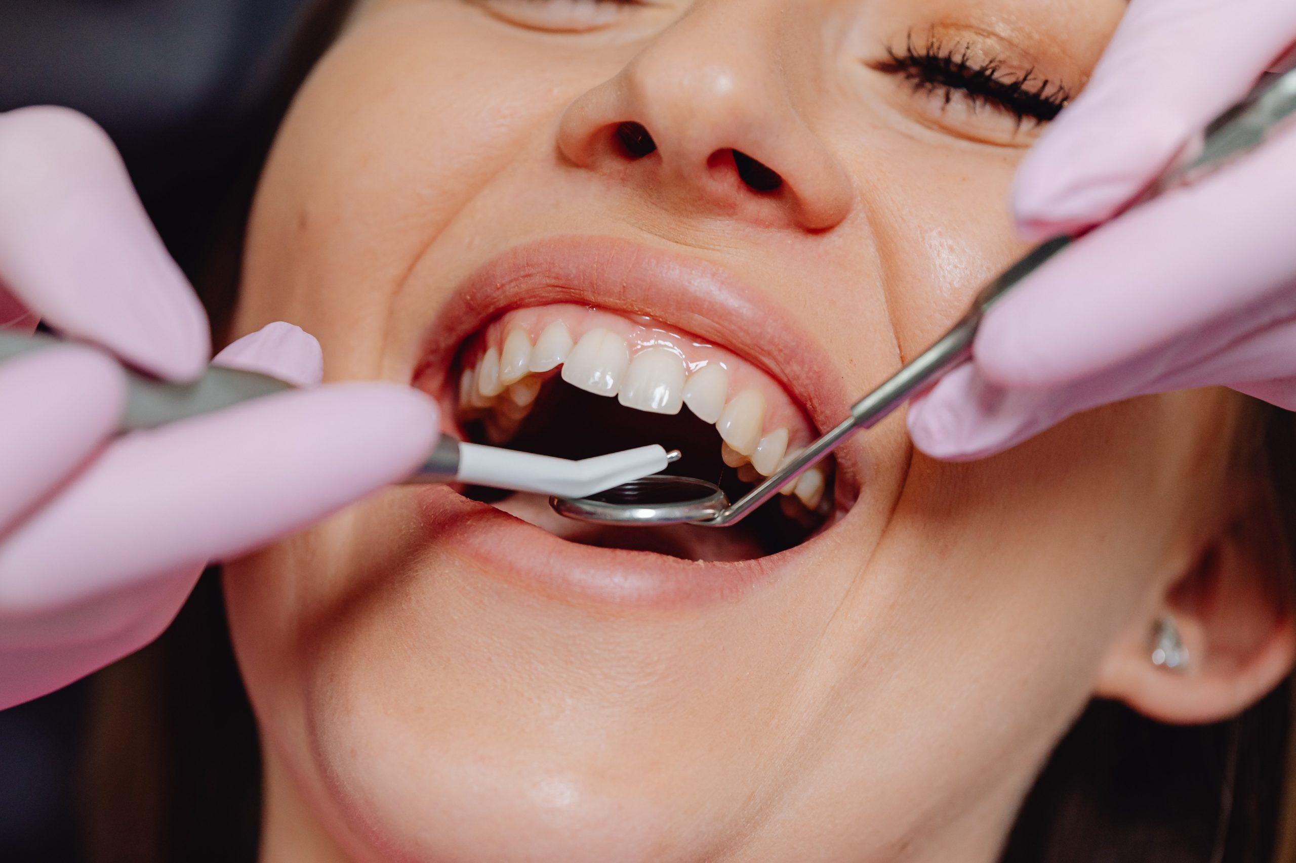 歯茎が痩せる原因と改善法