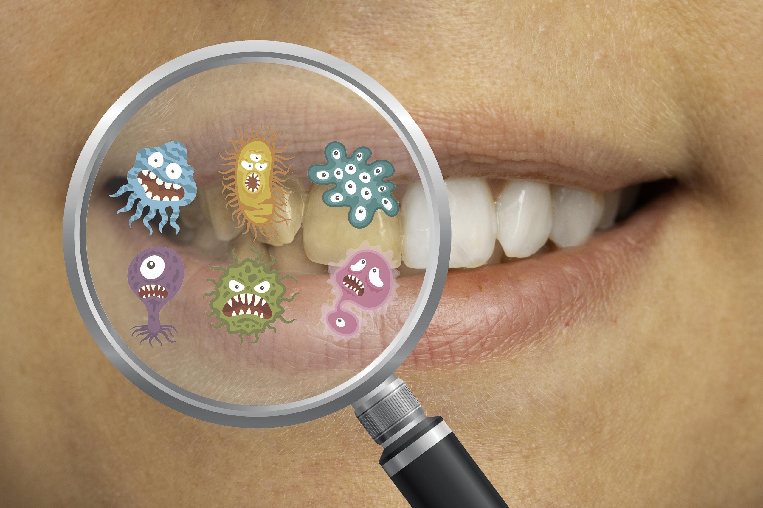 歯垢と歯石はどう違う?放っておくと健康や見た目にもダメージが