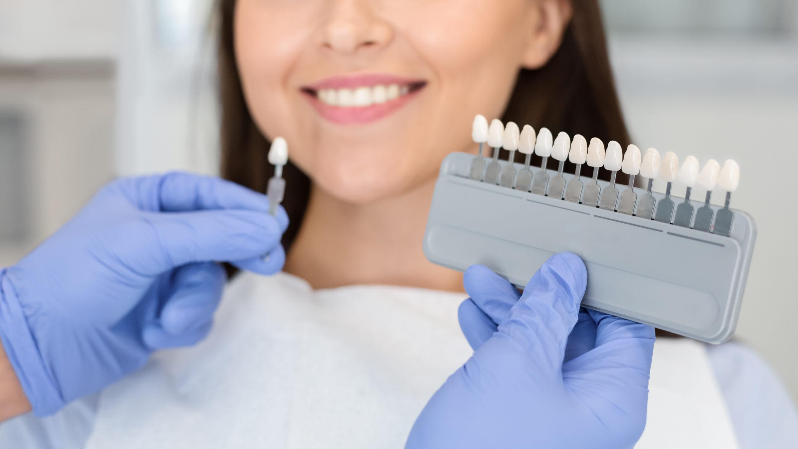 歯のクリーニングとホワイトニングの違いは?費用から施術頻度まで
